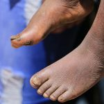 Free-Medical-Camp-in-Mt.-Elgon-Sub-County_37