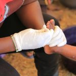 Free-Medical-Camp-in-Mt.-Elgon-Sub-County_65