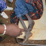 Free-Medical-Camp-in-Mt.-Elgon-Sub-County_c10