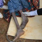 Free-Medical-Camp-in-Mt.-Elgon-Sub-County_c11